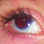 an aniridia eye